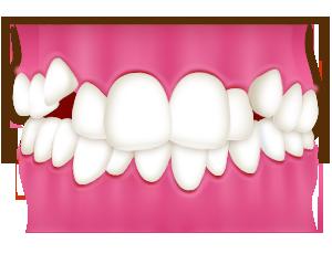 八重歯、乱ぐい歯(叢生)