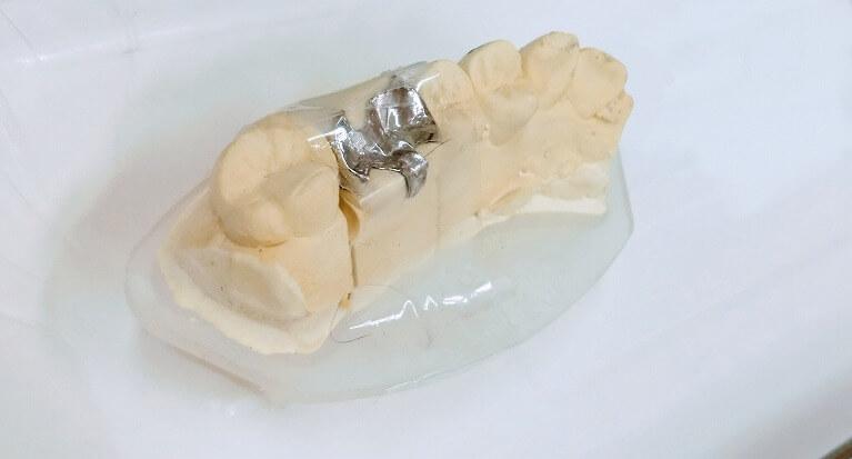 体調不良は銀歯が原因かも?