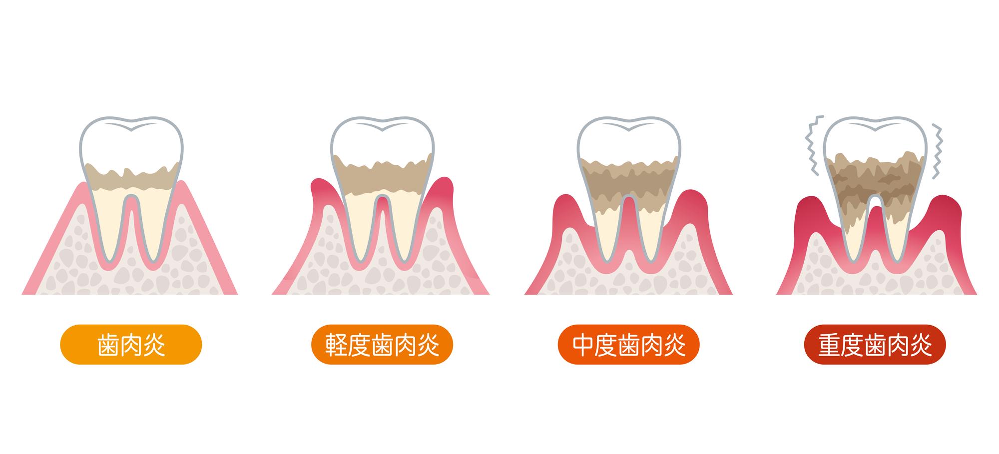 歯周病の症状と進行の様子